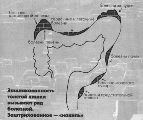 зашлаковка кишечника